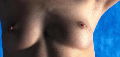 sexdating talgkjertler på penis