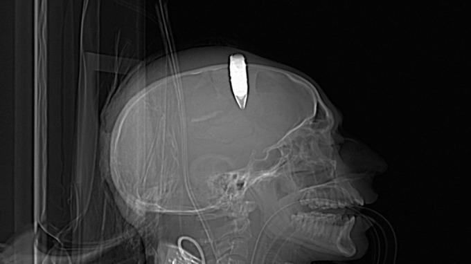 Soldat hadde eksplosiv kule i hodet, viser en verden på avveier, sykt! thumbnail