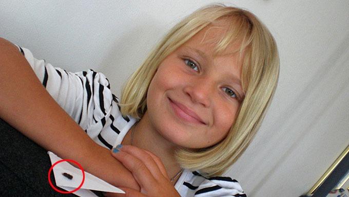 Stine Selchow (9) levde et helt år med veps i øret, skrekk og gru! thumbnail