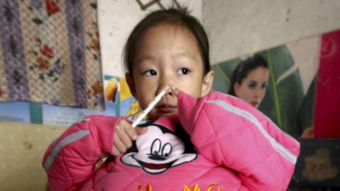 Lille Yunxing på fire år har en kjempemage, legene vet ikke hvorfor! thumbnail