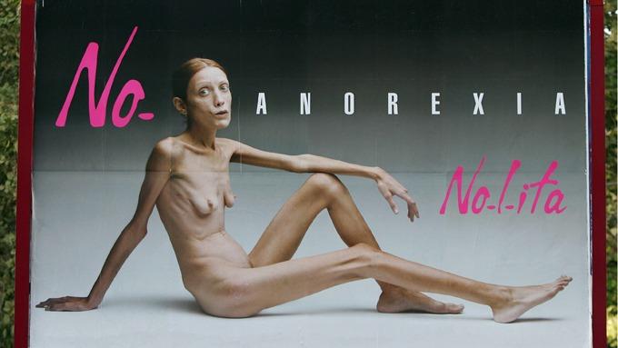 Isabelle Caro er død, og hennes død viser oss et feilutviklet kvinne-ideal! thumbnail