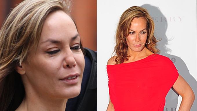 Kokain-nese er stygge greier, Tara Palmer-Tomkinsons nesevegg kollapset, er nå nyoperert! thumbnail