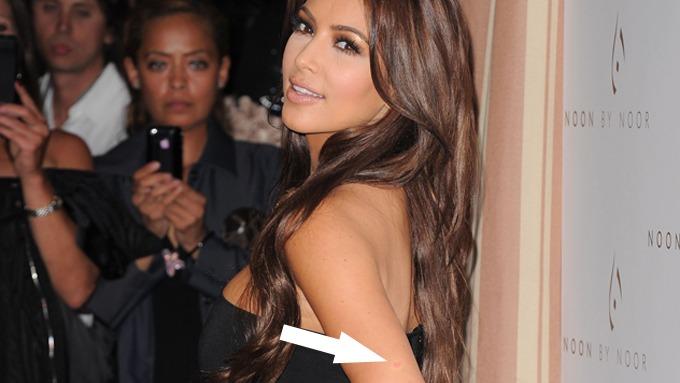 Kim Kardashian er diagnosisert med psoriasis, hun har stygg og dårlig hud! thumbnail