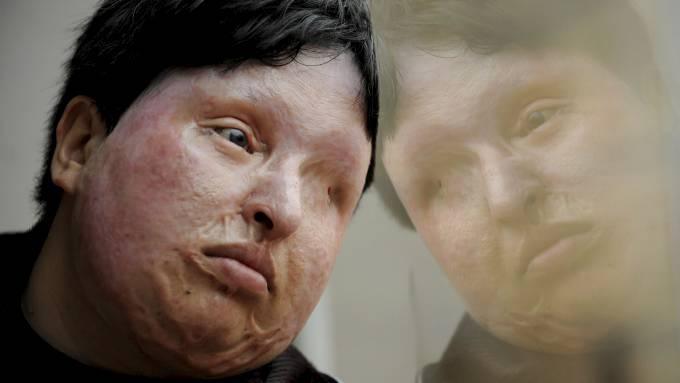Ameneh Bahrami ble offer for et syreangrep i 2004, hun benådet angriperen! thumbnail