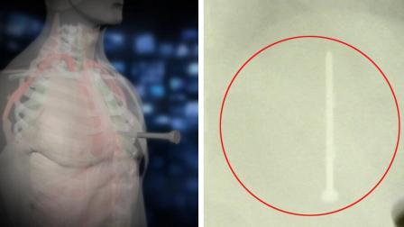30 år gammel mann overlevde spikerpistol skudd i hjertet! thumbnail